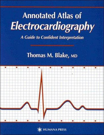Download Annotated Atlas of Electrocardiography