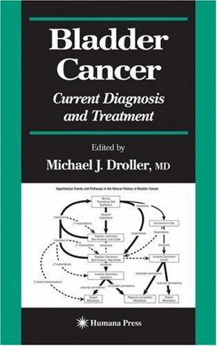 Download Bladder Cancer