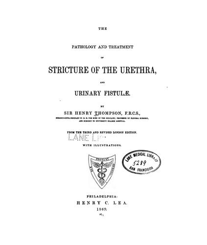 The Pathology and treatment of stricture of the urethra, and urinary fistulæ by Sir Henry Thompson