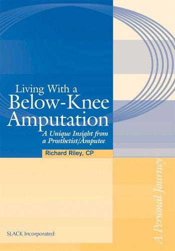Living with a Below-Knee Amputation by Richard Lee Riley